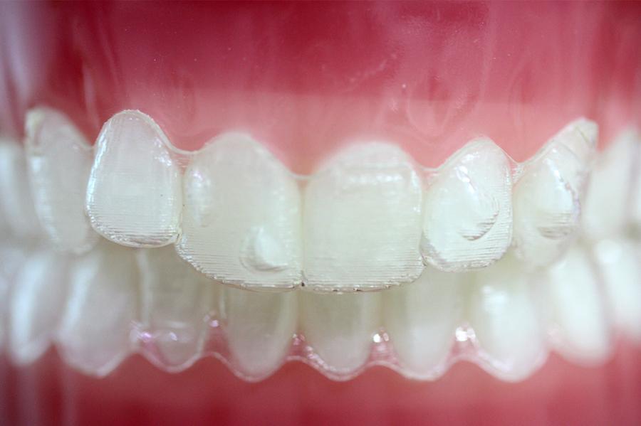 Invisalign, la ortodoncia más estética y más cómoda
