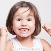 ¿Hay que llevar cuidado con los dientes de leche de mi hijo?