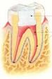 Endodoncia con microscopio