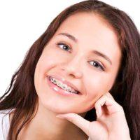 ¿Cuándo debo usar ortodoncia?